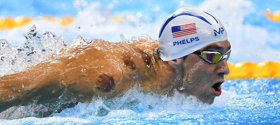 phelps cupping therapy